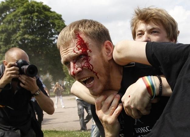 omofobia russia 1